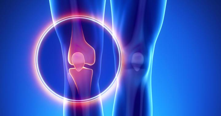 変形性関節症による痛みにコンドロイチン治療薬は有効か?の写真