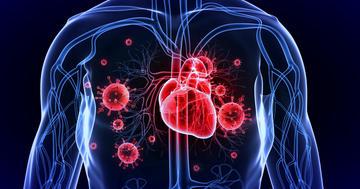 脳梗塞の原因にもなる「感染性心内膜炎」は早く手術したほうがいい?の写真