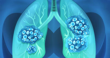 日本人に肺がんの薬セリチニブは安全か?の写真