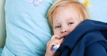 ソビラックス、バルトレックス、カチリなど・・・水痘(みずぼうそう)に使う薬剤について解説の写真 (C) NatUlrich - Fotolia.com
