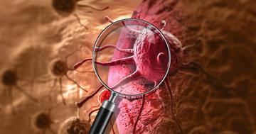 治療による発がんか、前立腺がんの放射線治療後に多かった3種類のがんの写真