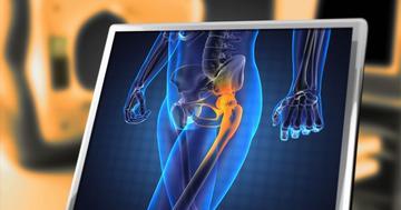 変形性股関節症に適切な運動療法とは?の写真