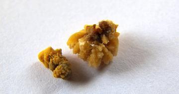 尿管結石の痛みを抑える薬、どれが効く?の写真