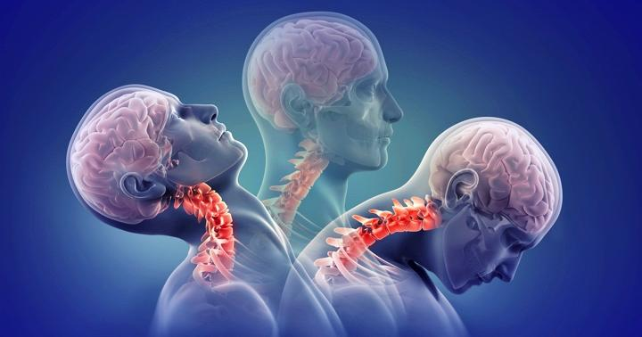 手術後早期のリハビリは脊髄手術後の痛みに有効?の写真
