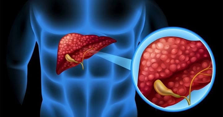 静岡県民の肝臓を調べたら、ビタミンが結果に関係していたの写真