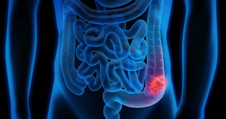 大腸がんの5年生存率、ステージI~ステージIVでどう違う?の写真
