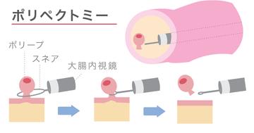 【大腸がんの治療法】手術、抗がん剤、内視鏡などの概略について解説の写真