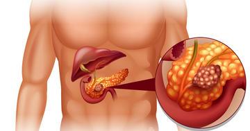 糖尿病の人に頻発する膵臓がんは薬の副作用か?の写真