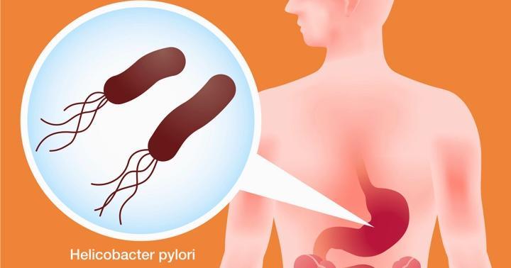 ピロリ菌除菌で精神症状が?治療中に症状が発生する頻度の研究の写真