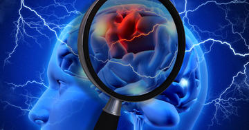 脳梗塞の予兆が出てから、1年以内に脳卒中になる危険性は?の写真