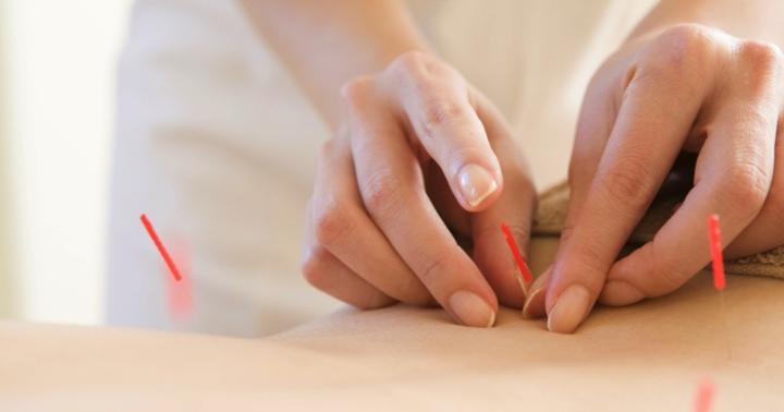 鍼で血圧を下げられる?の写真