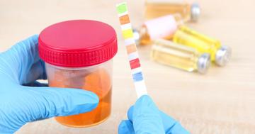 血尿の原因や治療法についての解説の写真