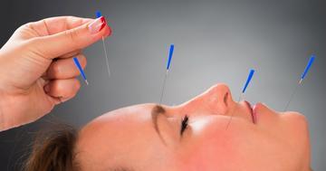 片頭痛に薬より鍼が効いた!4割の人で頭痛の回数半減の写真