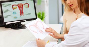 女性の避妊手術はどの方法が安全?4種類の手術を比較の写真