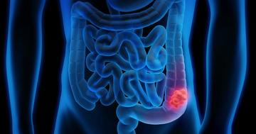 大腸がん検診は何歳からどの検査をする?米政府機関が実績をもとに推奨の写真