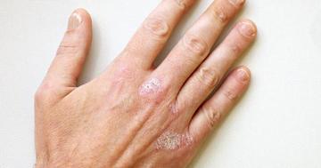 20代で指の骨が破壊される「乾癬性関節炎」、新薬アプレミラストの効果は?の写真