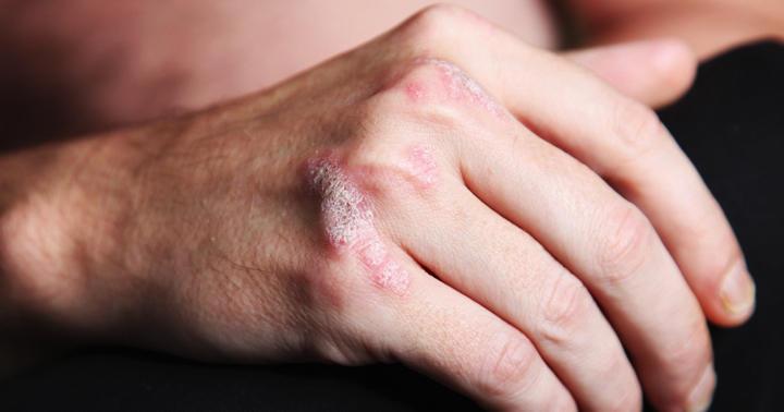 肌がガサガサ、指も曲がる乾癬性関節炎に「幻の薬」トルツの効果は?の写真