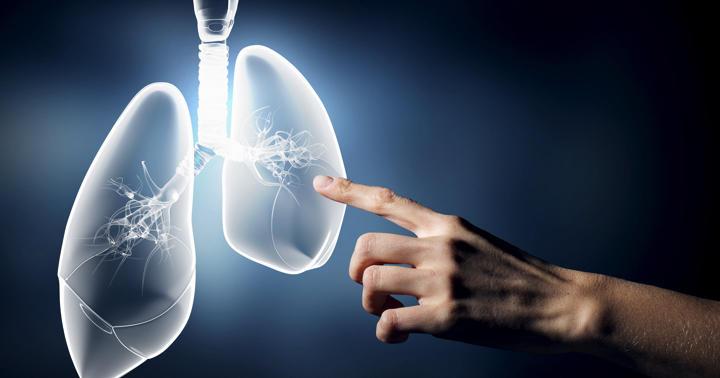 新薬キイトルーダが肺がんにも効いた!非小細胞癌に既存薬より勝る効果の写真