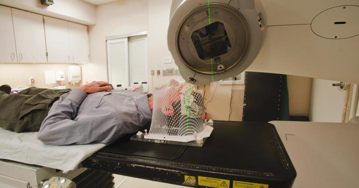 放射線治療で認知症に?全脳照射なしでも放射線治療の生存率は変わらなかったの写真