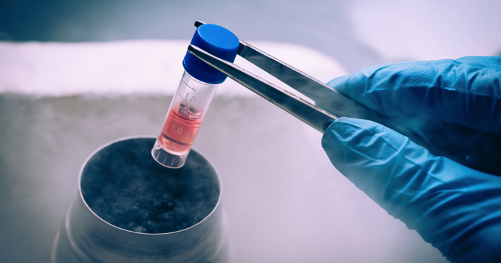 新しい受精卵より凍結したほうがいい?「PCOS」の不妊治療の結果の写真