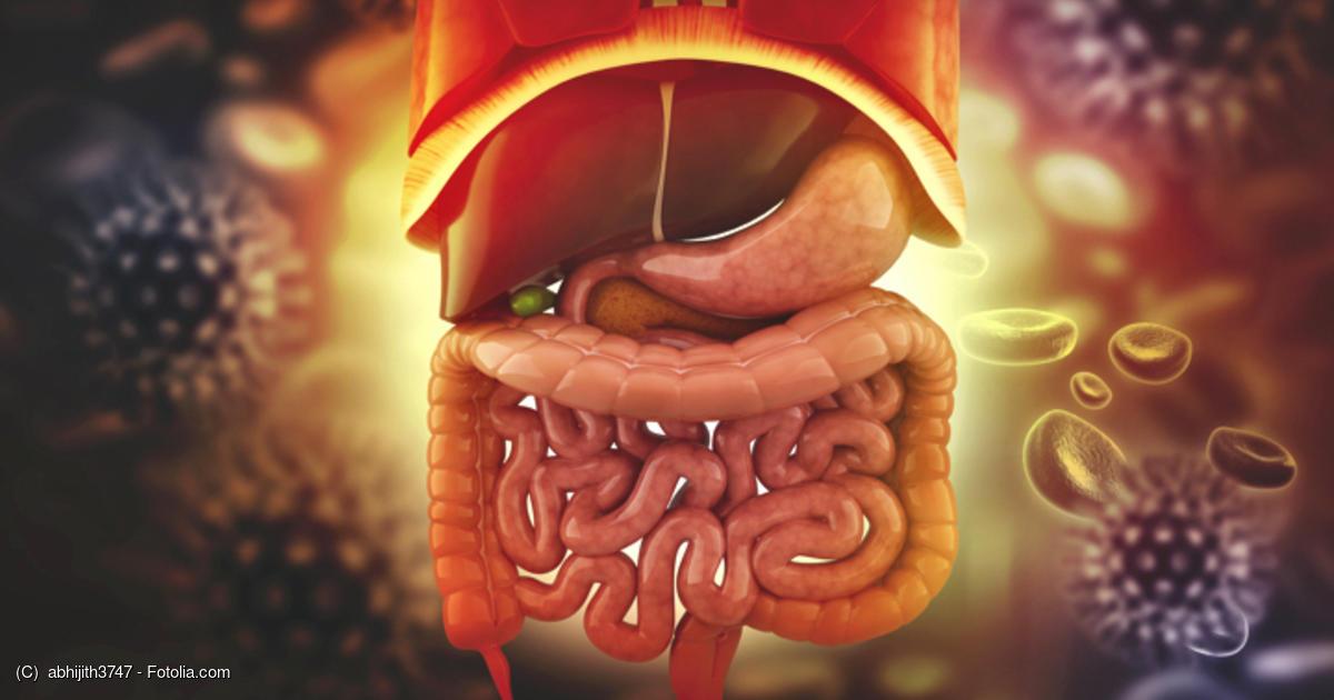 憩室 食事 アルコール 炎 大腸