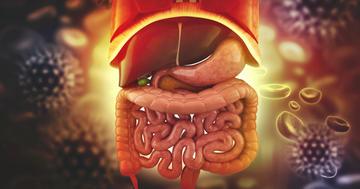 抗生物質は要らない?憩室炎を抗生物質なしで治療した結果の写真