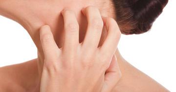 かゆい蕁麻疹、原因不明で長引いていても新薬ビラノアは効く?の写真