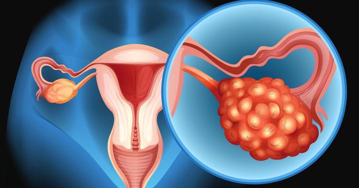 卵巣がんが再発、新薬ニラパリブの効果は?の写真