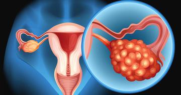 卵巣がんが再発、新薬ニラパリブの効果は?の写真 (C) blueringmedia - iStock