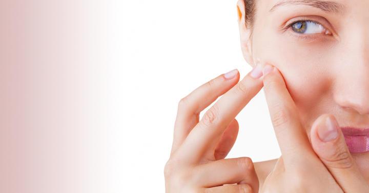 ニキビの薬で9%の子どもに先天異常が?イソトレチノインの危険性の写真