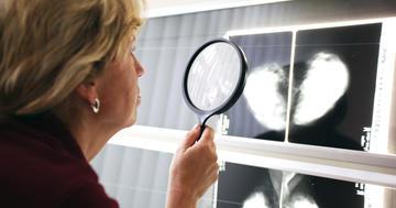 マンモグラフィーで乳がんを早期発見しても大きいがんは減らなかったの写真