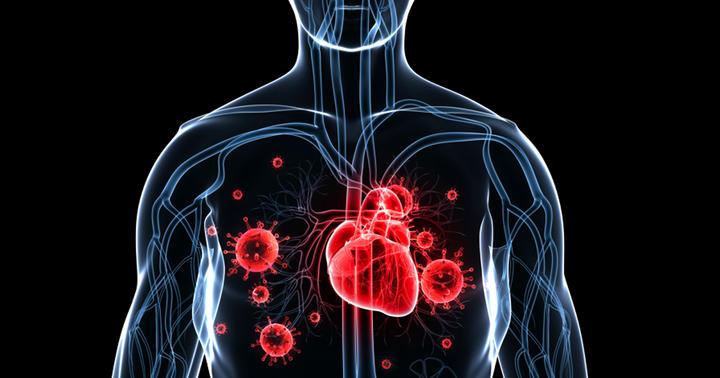 肺炎になったあと10年間は心不全が増える?の写真
