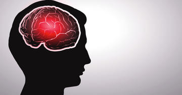 脳に動脈瘤が見つかった!22年放置するとどうなる?の写真
