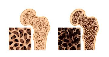 骨がもろくなる骨粗鬆症、男性も薬で骨折を防げる?の写真