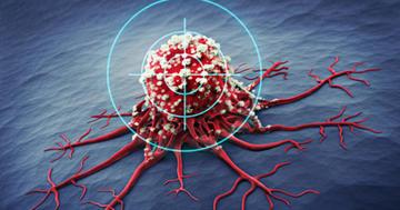 転移した腎がんにインターフェロンと分子標的薬のどちらが効く?の写真