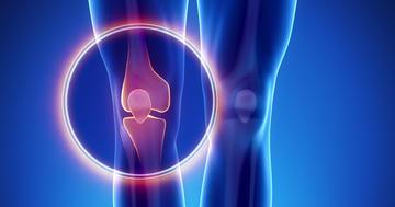 膝が痛む変形性膝関節症、治療の多くは証拠の質が低いの写真
