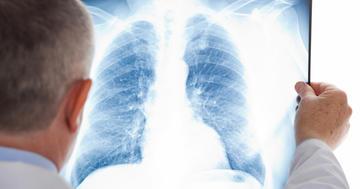 がん治療の免疫チェックポイント阻害薬で5%に肺臓炎、5人死亡の写真