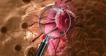肺がんが脳に転移、治療は?EGFR変異陽性非小細胞癌に対する治療の写真