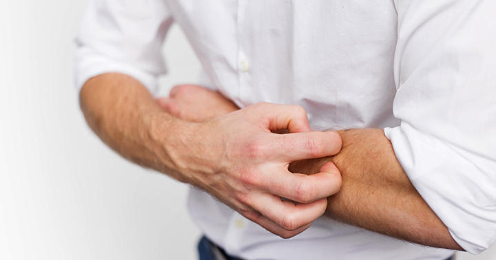 悪性黒色腫にオプジーボを使った人の71%に有害事象、疲労・かゆみなどの写真