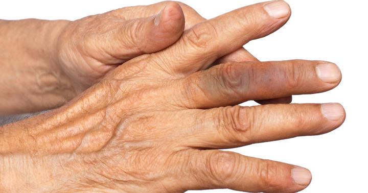 急に中指が痛くて青くなった!原因不明の「アッヘンバッハ症候群」の写真